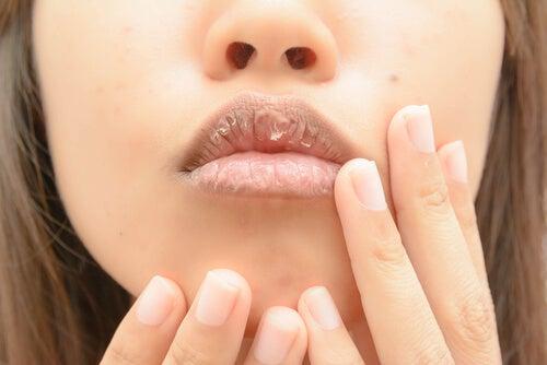Mulher com a boca ressecada