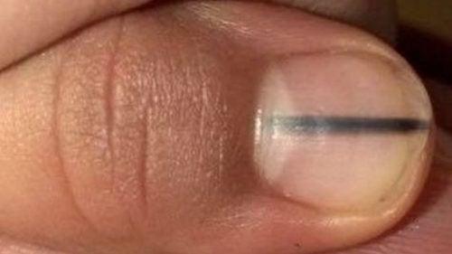 Uma linha negra nas unhas pode ser um sinal de câncer?