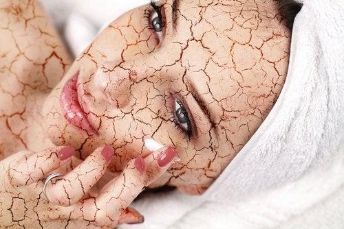 Mulher com a pele seca