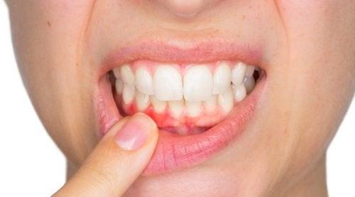 Gengiva inflamada que pode ser um sintoma de uma infecção dental