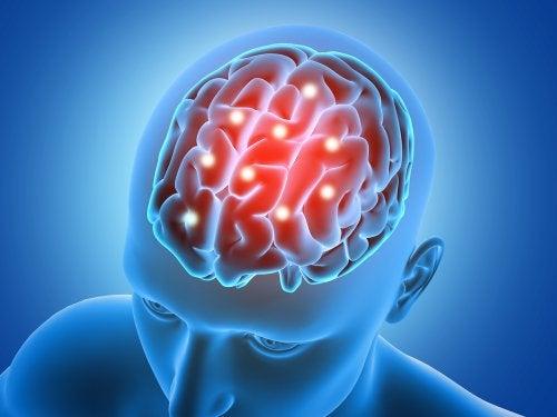 Cérebro de pessoa que deixou de praticar exercícios