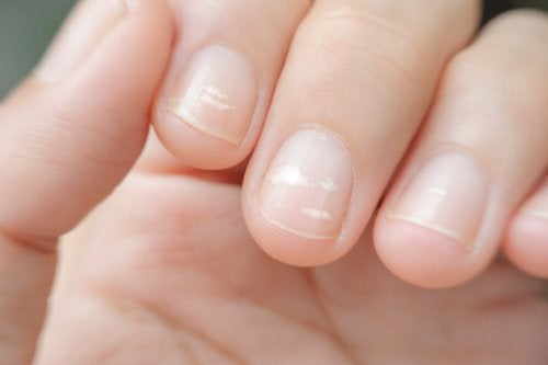 As linhas nas unhas podem indicar déficit de zinco