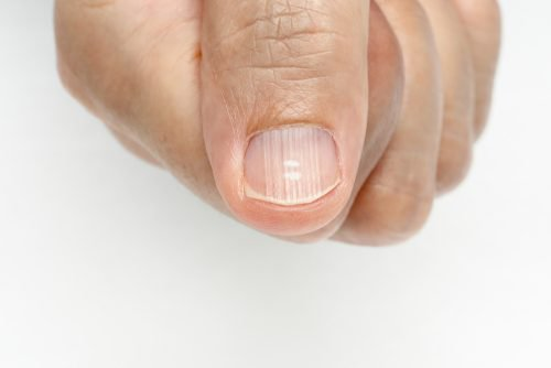 Por que tenho linhas nas unhas e como eliminá-las?