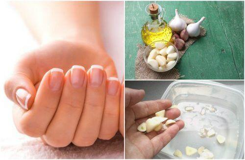 5 tratamentos caseiros para acelerar o crescimento das unhas