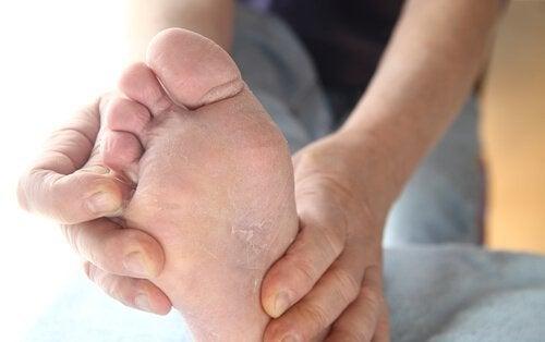 Amido de milho para tratar o pé de atleta