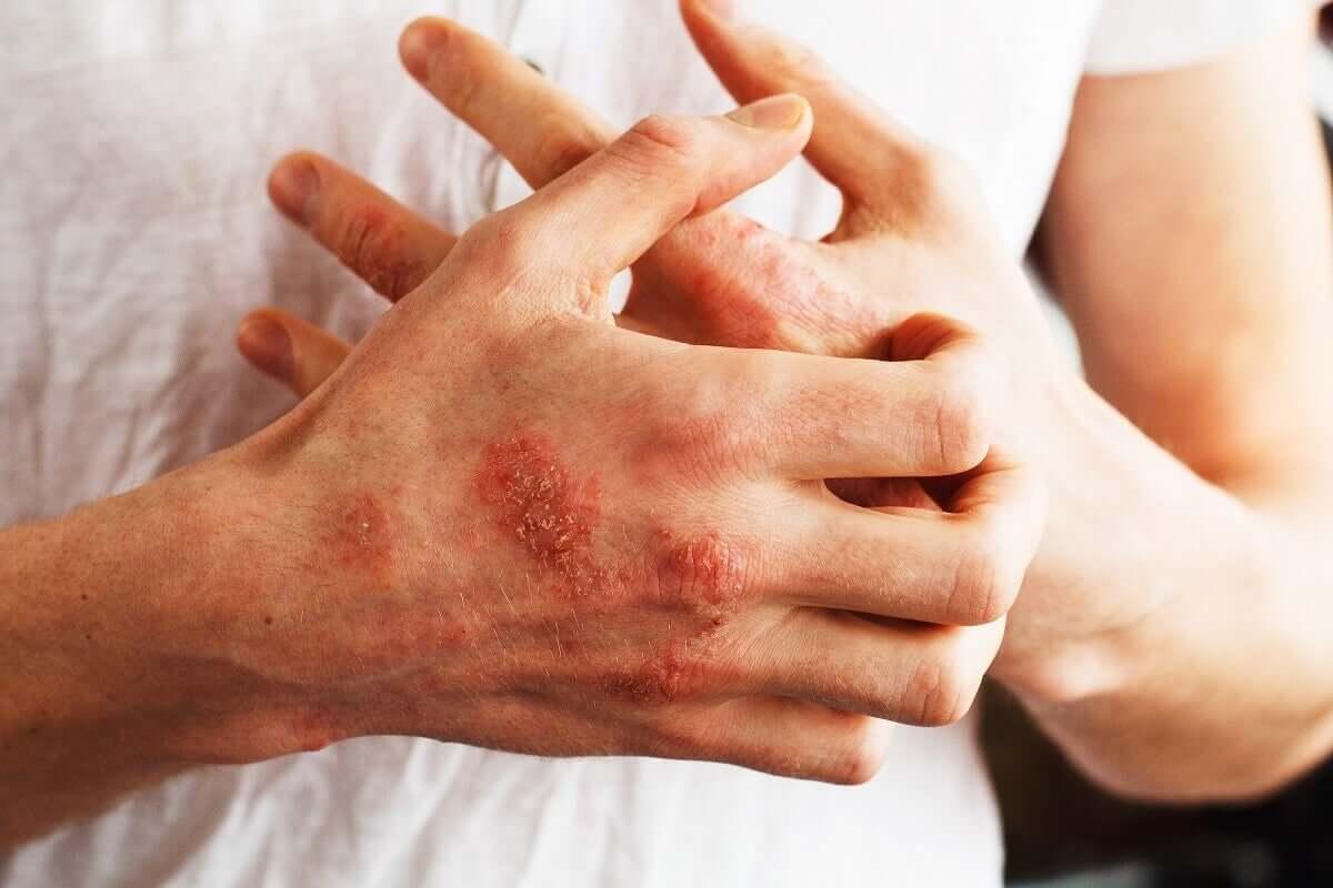 Possíveis tratamentos da psoríase