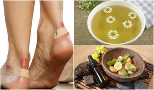 Aliviar as rachaduras nos pés com 5 soluções naturais