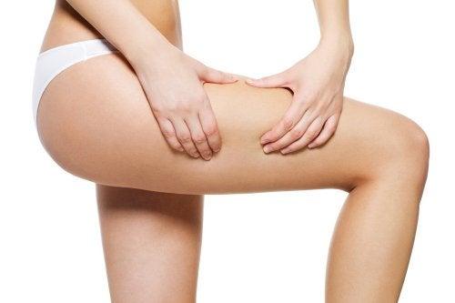 Mulher com celulite nas pernas