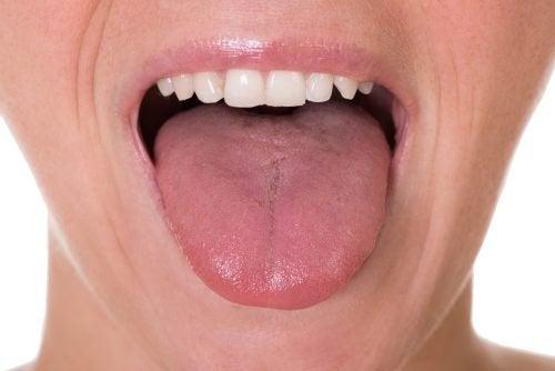 Os 5 primeiros sintomas do câncer de língua