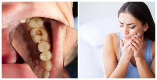 Infecção dentária: 7 sintomas de alerta