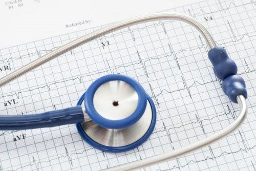 Eletrocardiograma de uma arritmia