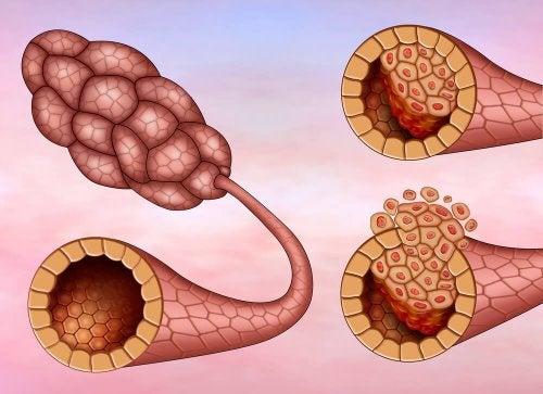 Desenho de câncer de mama