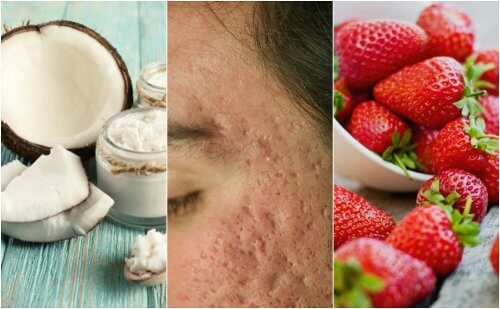 Como atenuar cicatrizes de acne com 5 tratamentos caseiros