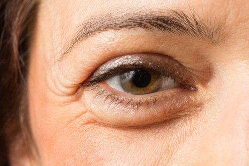 O óleo de rícino pode ajudar a aliviar olhos com bolsas e olheiras