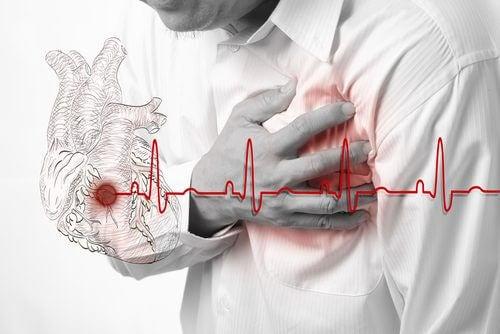 Desenho de um eletrocardiograma durante uma arritmia