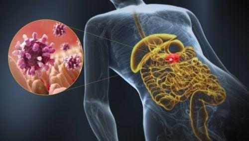 Gastroenterite
