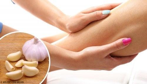 Remédios naturais para reduzir edemas