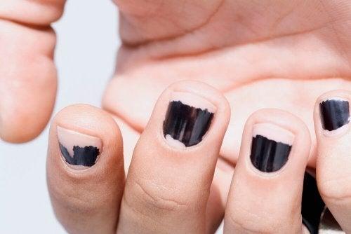 Roer as unhas pode ser uma das razões das unhas frágeis