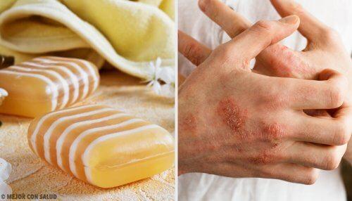 Como fazer um sabonete caseiro de glicerina, própolis e argila para a dermatite