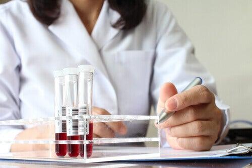 Técnica avaliando o  tipo de sangue