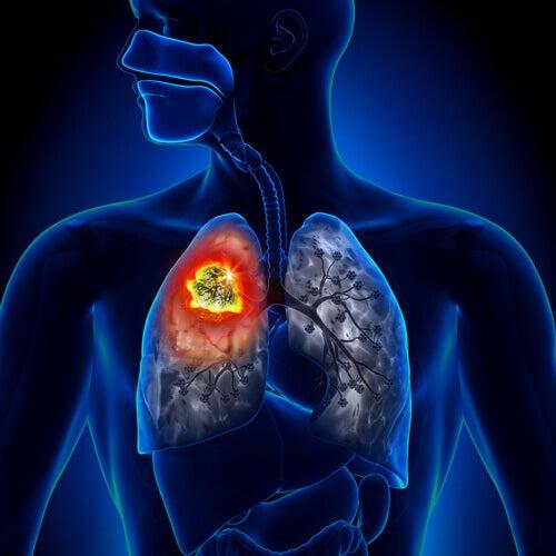 Imagem de câncer de pulmão