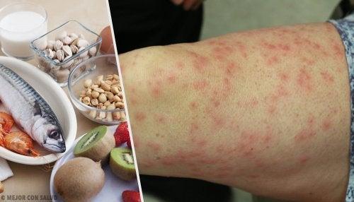 Conheça os alimentos alergênicos mais comuns e seus melhores substitutos