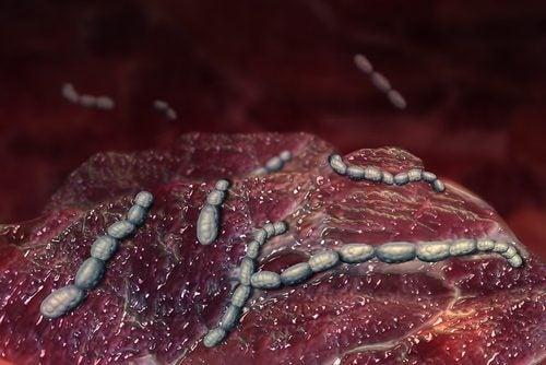 Microscopia da escarlatina ou febre escarlate