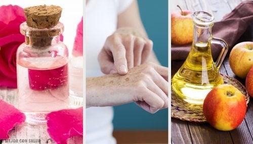 8 remédios naturais para clarear manchas nas mãos