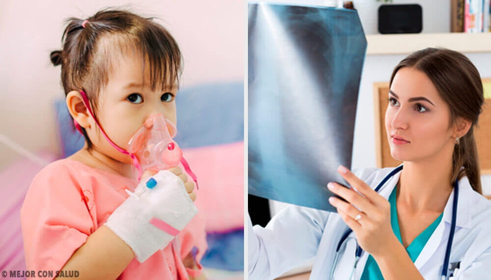 Conheça o tratamento da pneumonia