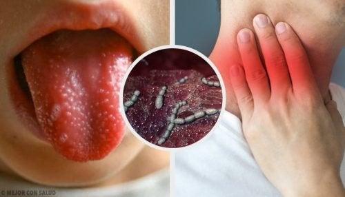 Escarlatina ou febre escarlate
