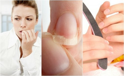 8 razões das unhas frágeis