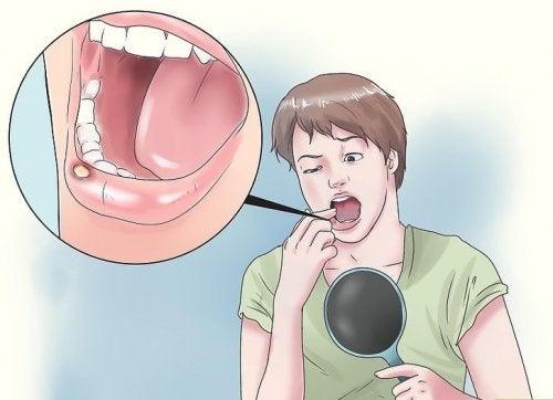 8 remédios naturais para as úlceras na boca