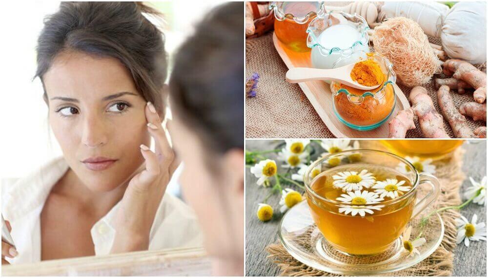 5 tratamentos cosméticos para reduzir as olheiras naturalmente
