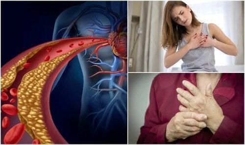 Você tem colesterol alto? Descubra através desses 10 sintomas