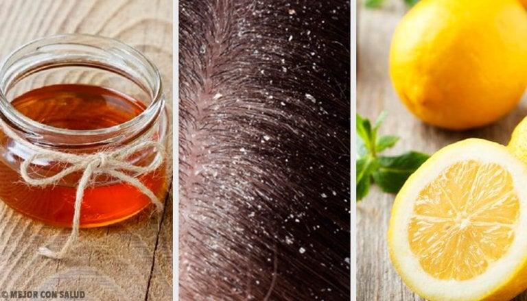 10 remédios naturais eficazes contra a caspa
