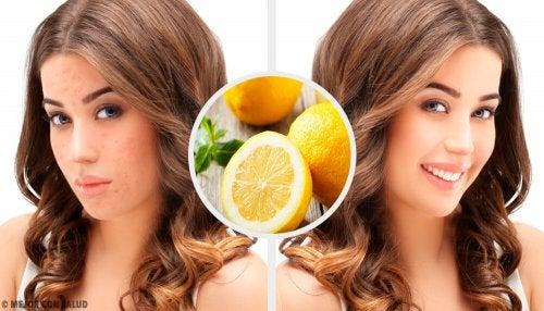 4 remédios naturais para eliminar cicatrizes de acne na cara