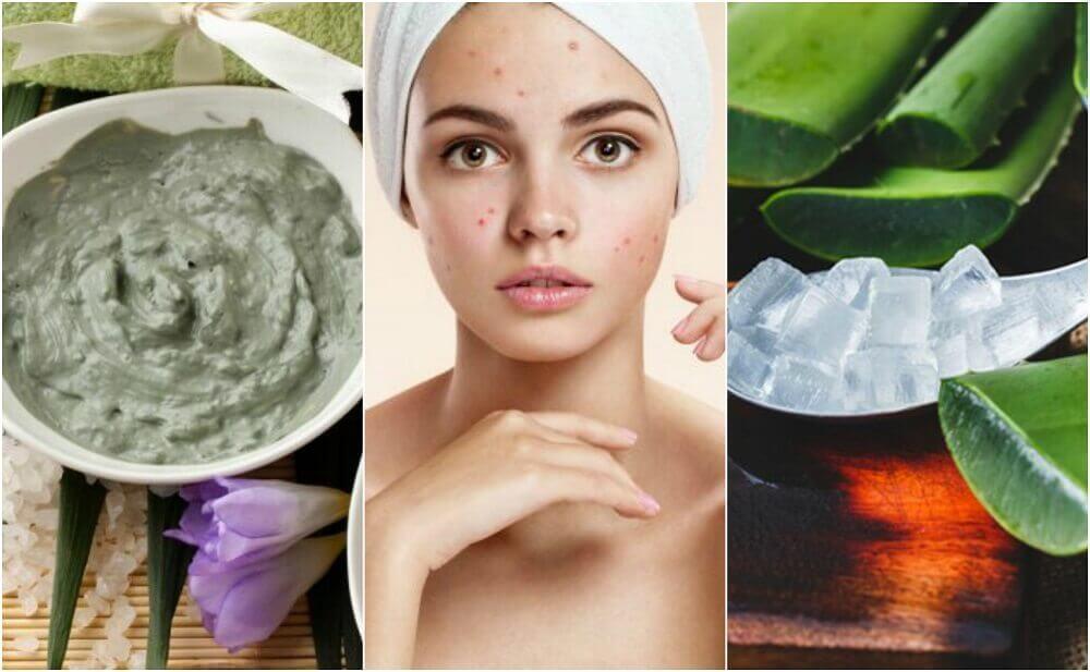 5 tratamentos de origem natural para a acne no rosto