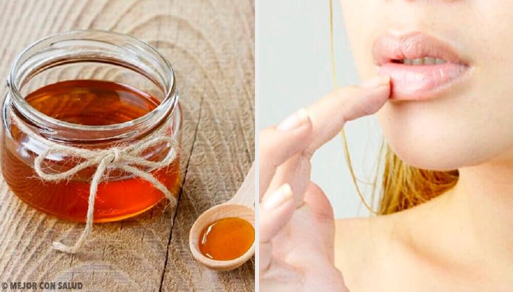 6 remédios naturais para as rachaduras nos lábios