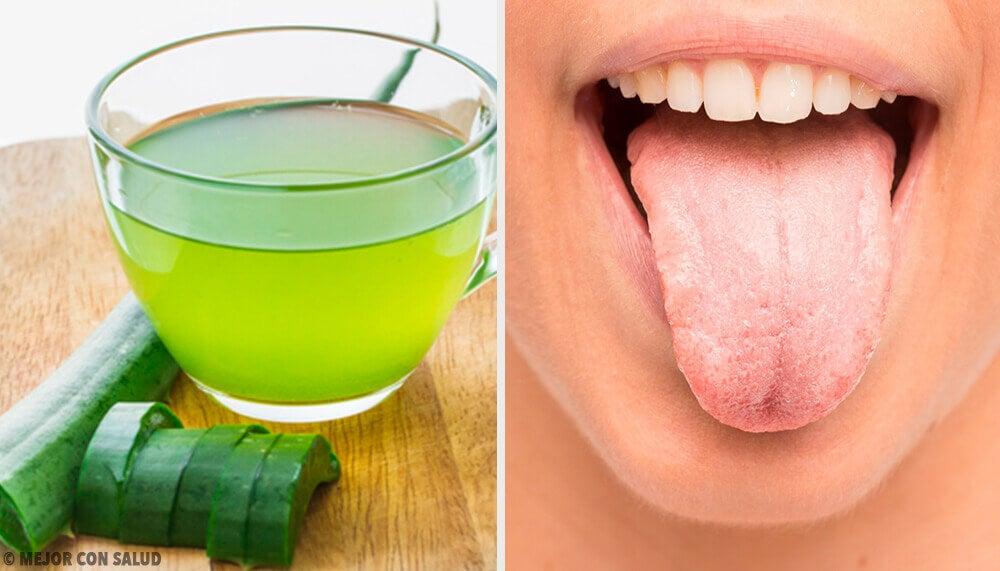 7 remédios caseiros para a língua branca