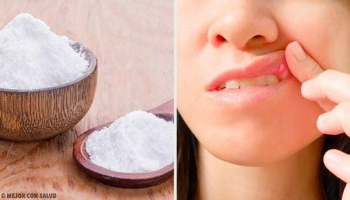 8 remédios para curar feridas bucais
