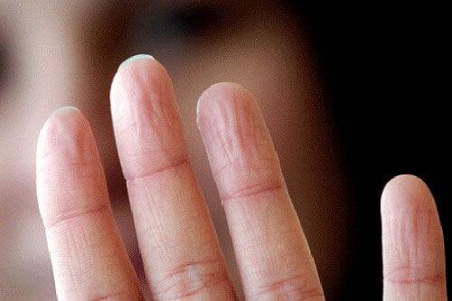 Mãos enrugadas revelam problemas de saúde