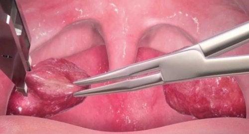 Amígdalas