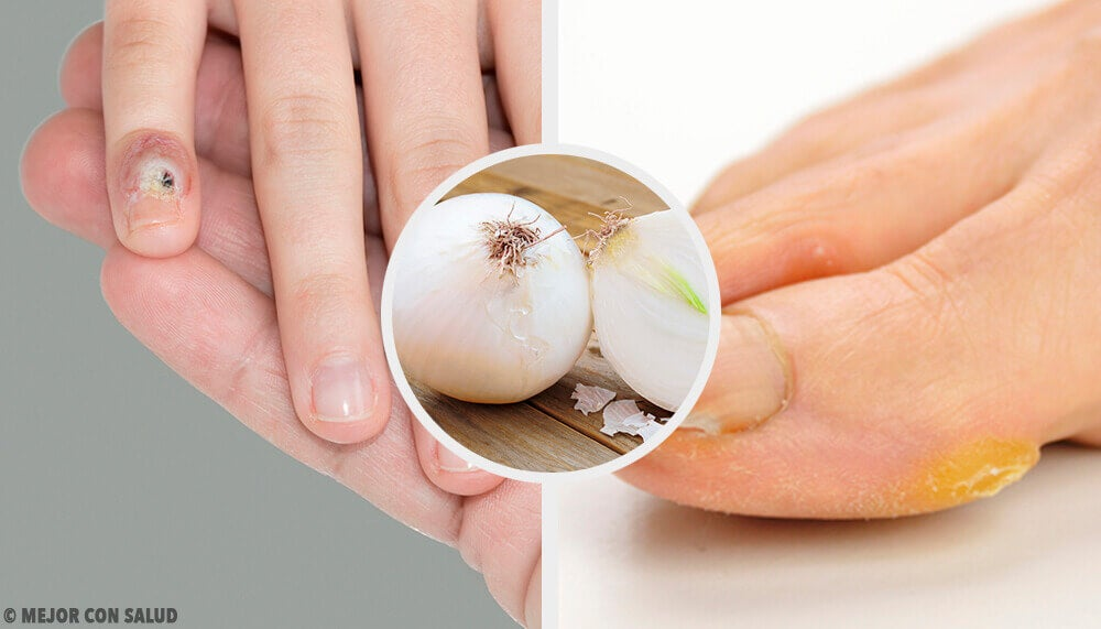 Como eliminar os calos das mãos e dos pés de forma natural