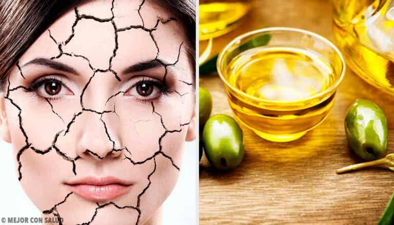 Maneiras naturais de reduzir ressecamento da pele