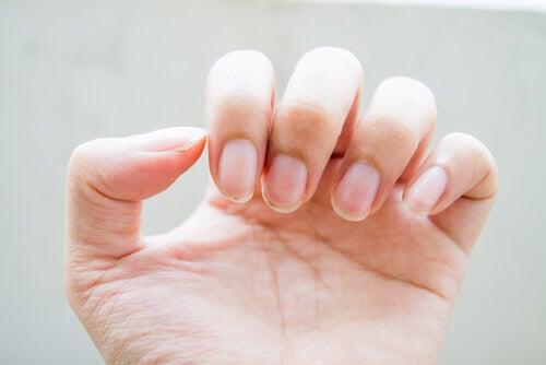 Problema de fragilidade nas unhas