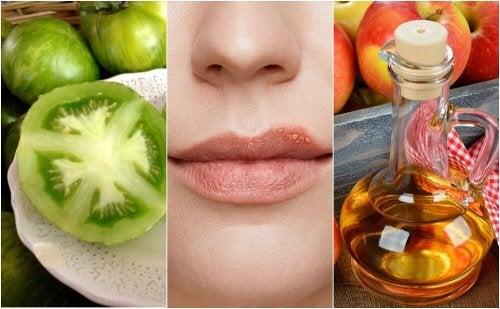 Como combater o herpes labial com 5 tratamentos naturais