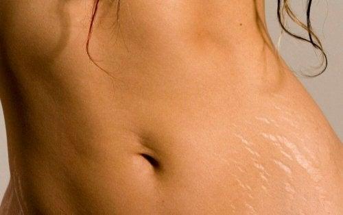 Óleo de argan ajuda a prevenir as estrias