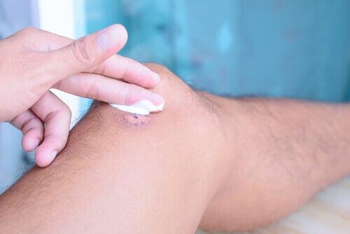 Vaselina para curar feridas