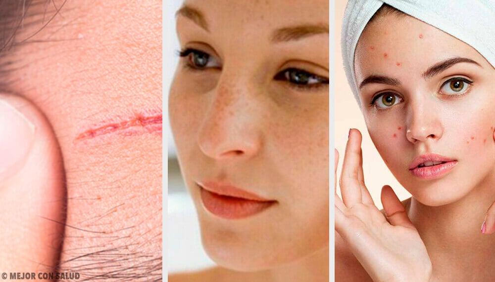 Os problemas mais comuns no rosto e como tratá-los