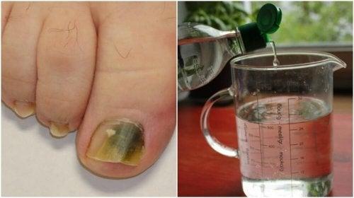 Receita à base de álcool e ingredientes naturais para combater os fungos nas unhas